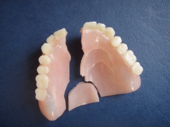Broken Denture Repair