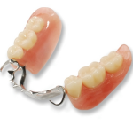 metalacrylicpartialdenture
