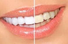 Dental Whitening Trays Seattle Denture Repair